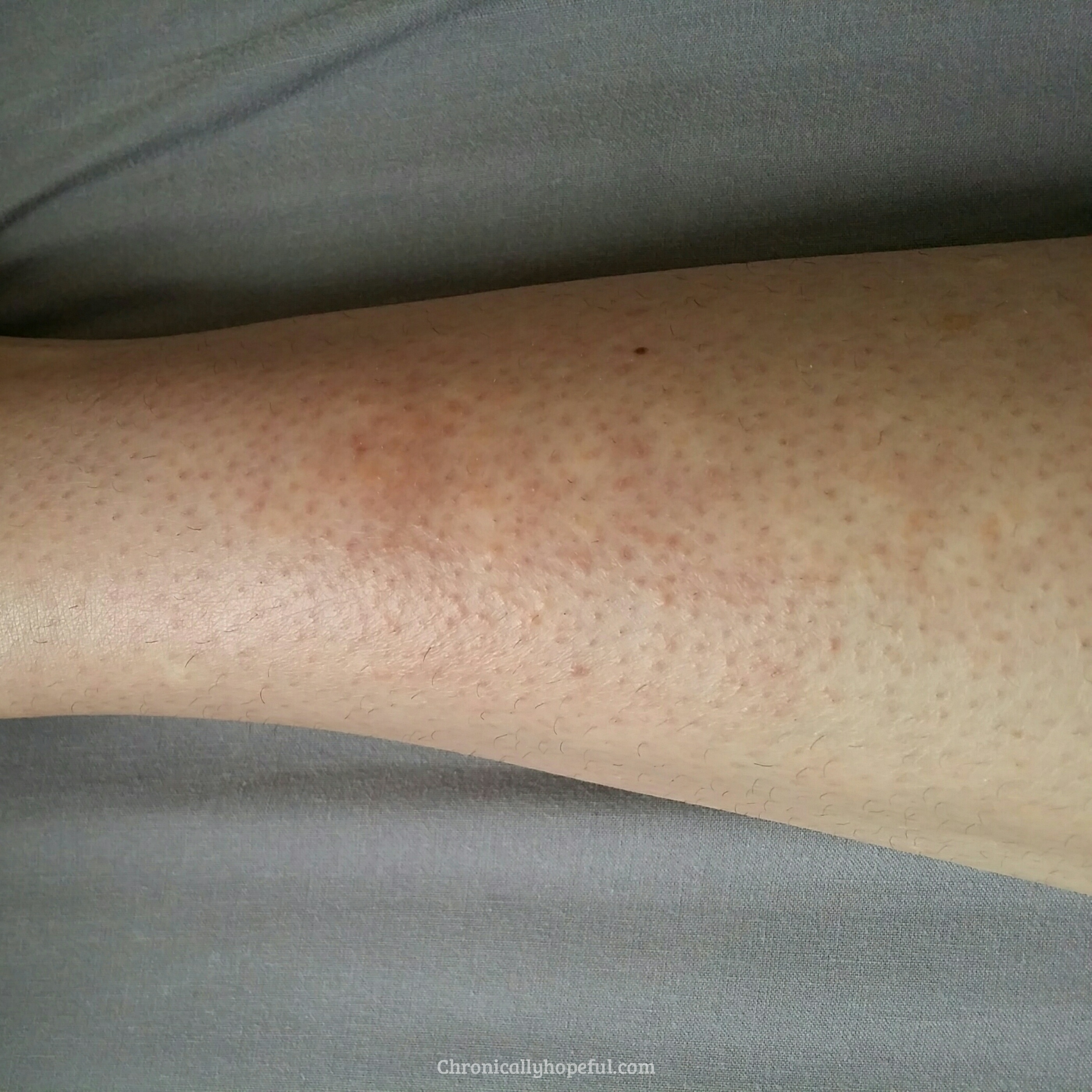 Histamine Intolerance How I M Reducing My Rashes And Hives